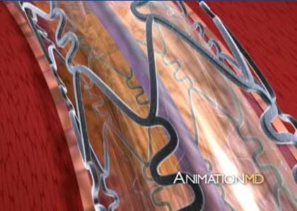 Animation MD, 3d Medical Animations